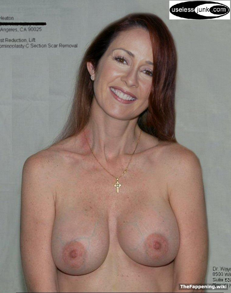 Has patricia heaton ever been nude